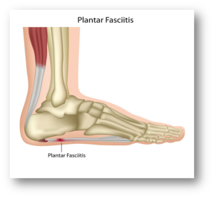 Foot Pain, Heel pain, chiropractic therapy, orthotics, plantar Fasciitis