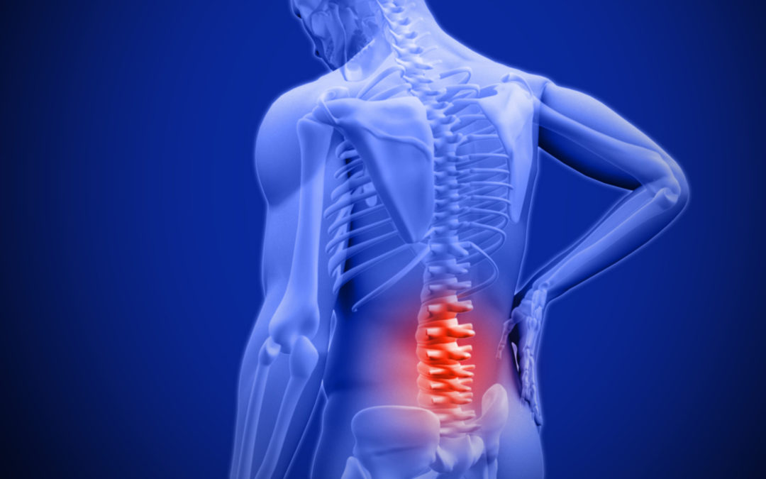 Got Back Pain? Try This Before Grabbing Those Painkillers!